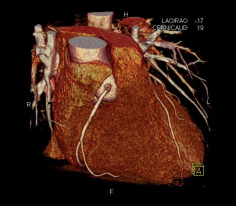 LP-CT Herz/ - radprax Vorsorgeinstitut